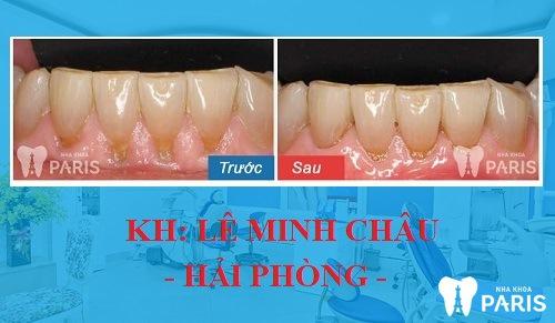 trước và sau khi lấy cao răng