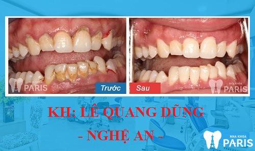 Kết quả trước và sau khi lấy cao răng