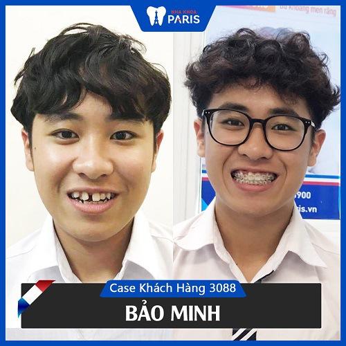 Chỉnh răng thưa bằng niềng răng