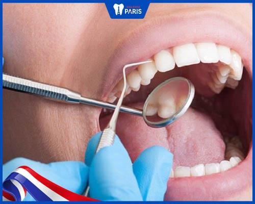 Tiến hành lấy cao răng