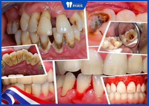 lấu cao răng có đau không