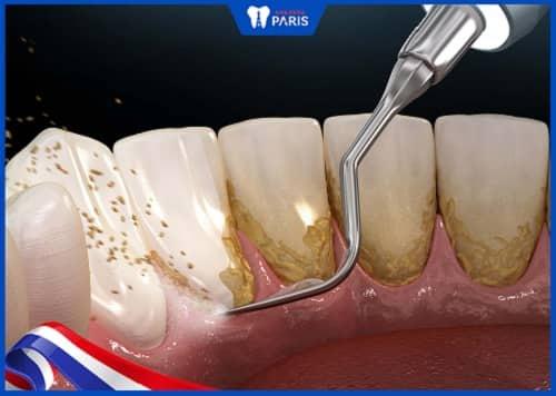 lấy cao răng có hại gì không