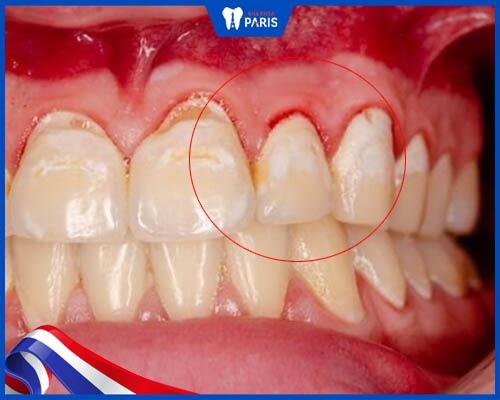 Ngăn ngừa chảy máu chân răng