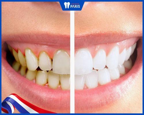 Giúp răng trở nên trắng sáng hơn
