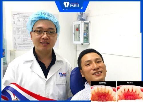 review lấy cao răng ở đâu tốt hà nội