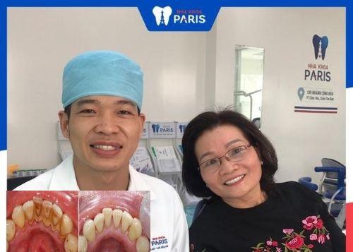review lấy cao răng ở đâu tốt tphcm