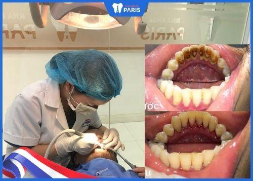 review lấy cao răng ở đâu uy tín