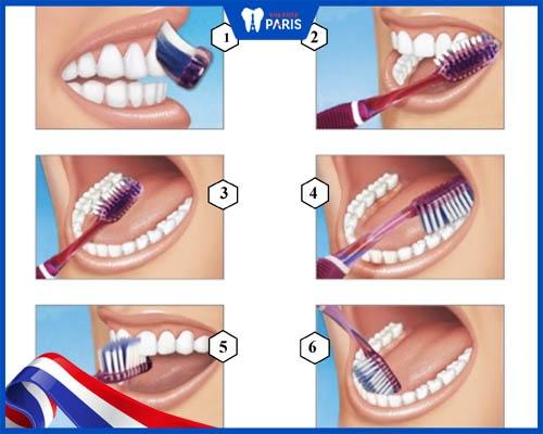 Lấy cao răng xong nên làm gì?