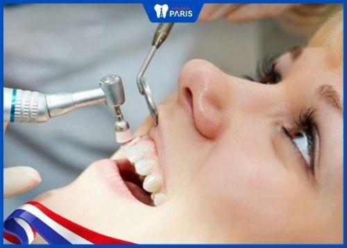 lấy cao răng mấy tháng một lần