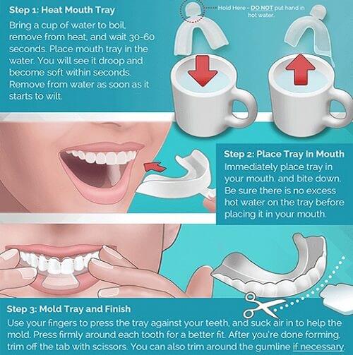 máng ngậm trắng răng