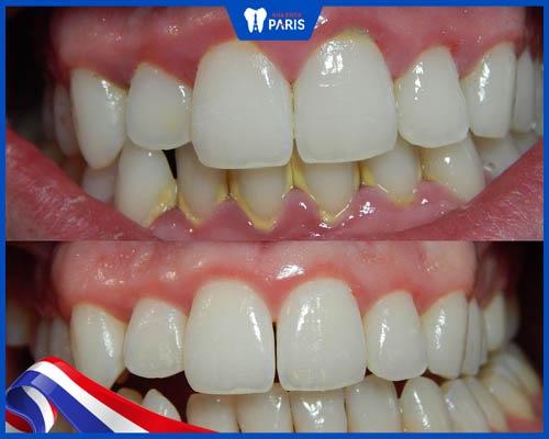 Nên lấy cao răng trước hay sau khi ăn?