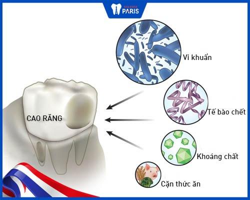 Nguyên nhân gây cao răng