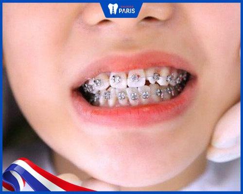 Nguyên nhân khiến niềng răng bị vàng