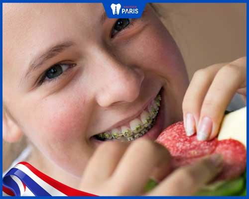 Xây dựng chế độ ăn khoa học khi niềng răng