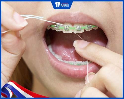 Vệ sinh răng miệng không đúng cách