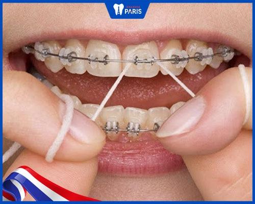 Xỉa răng bằng tăm nước hoặc chỉ nha khoa