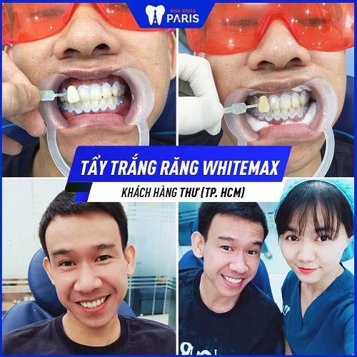 Tẩy trắng răng bằng công nghệ WhiteMax