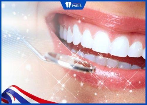 phủ răng sứ nano