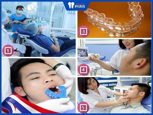 Quy trình tẩy trắng răng bằng máng