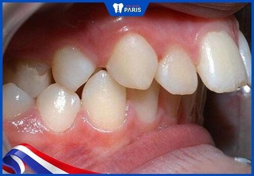 bọc răng sứ không phù hợp với răng hô nặng