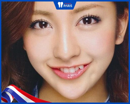 Hình ảnh của răng khểnh