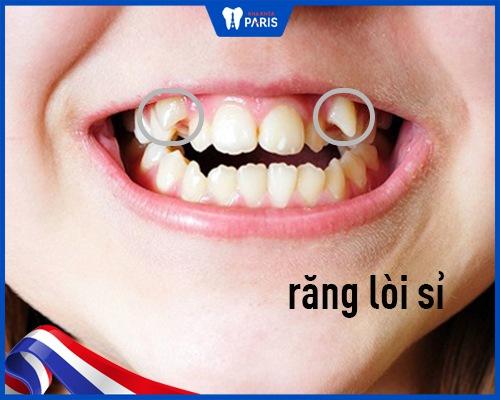 răng khểnh và răng lòi sĩ