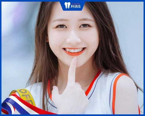 Con gái có răng khểnh 1 bên hoặc 2 bên thì sao?