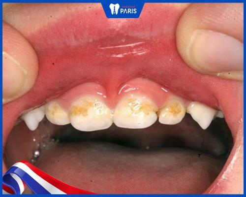 răng sữa bị vàng