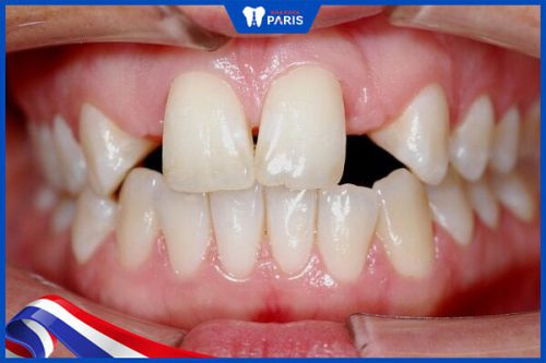 Răng thưa do thiếu mầm răng