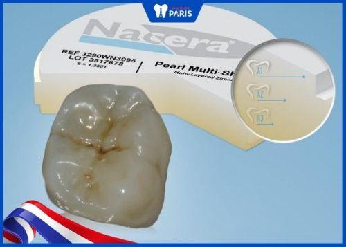 răng sứ nacera multi-shade