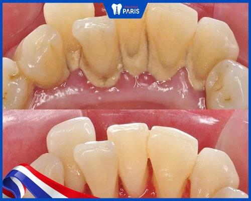 khách hàng đánh giá lấy cao răng có bị chảy máu không