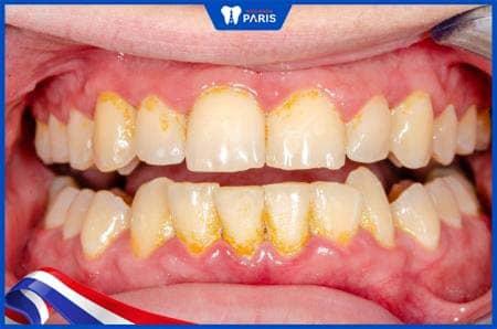 tác hại khi không lấy cao răng