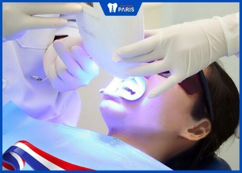 tẩy trắng răng cần kiêng những gì