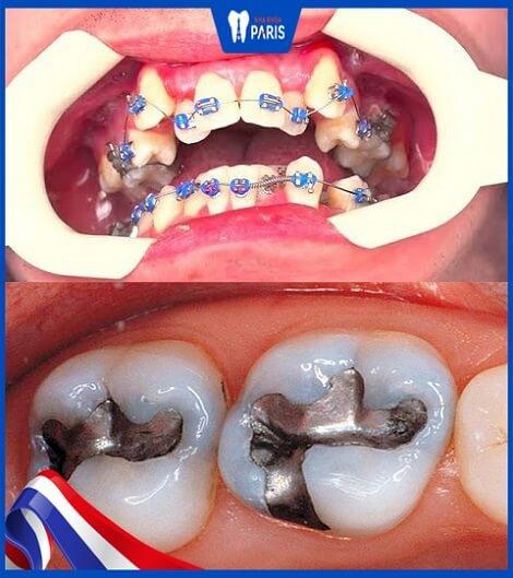 những tác hại của phương pháp tẩy trắng răng