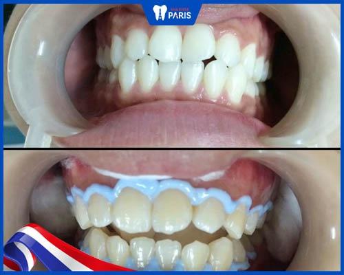 Xem xét mình có phù hợp tẩy trắng răng không