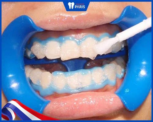 Tẩy trắng răng có hại không theo phân tích khoa học