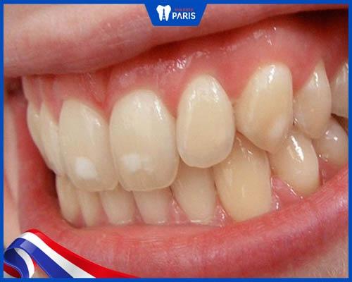 Làm hỏng men răng