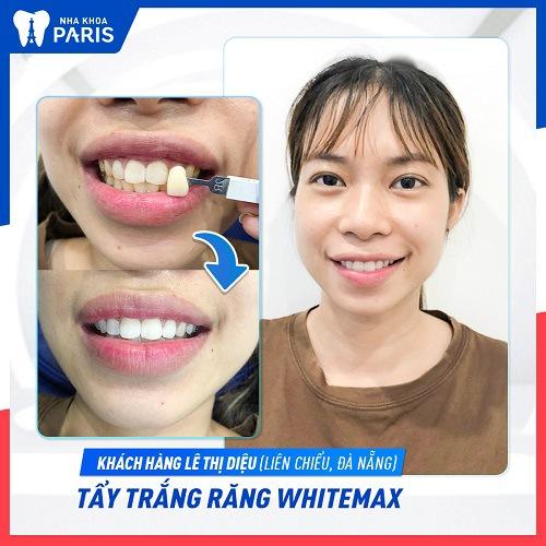 tẩy trắng răng kiêng ăn gì
