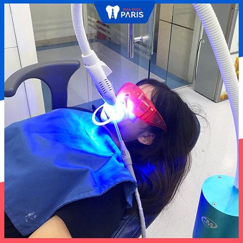 Vỏ cau không thể thay thế biện pháp tẩy trắng răng chuyên nghiệp