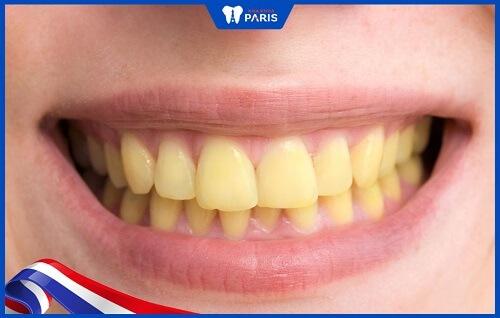 đeo máng tẩy trắng răng có hiệu quả không