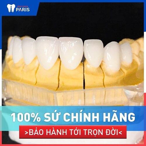 răng sứ veneer bảo hành bao lâu