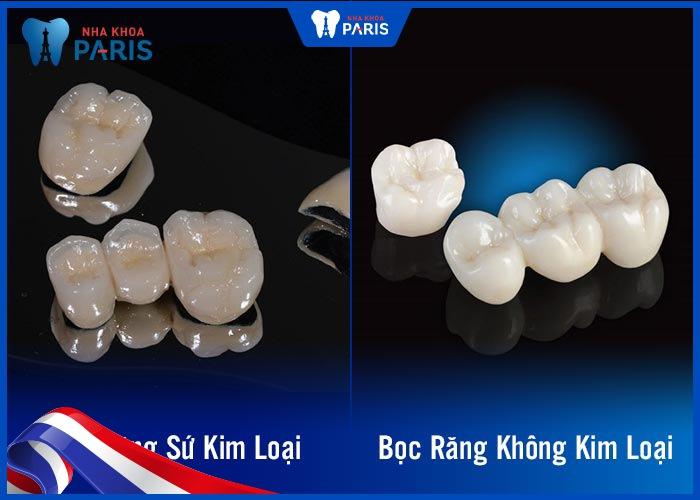 bọc răng hàm bị sâu