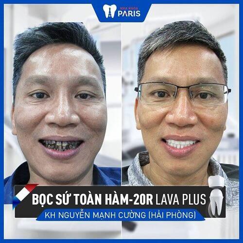 Khách hàng bọc răng sâu không đau tại nha khoa paris
