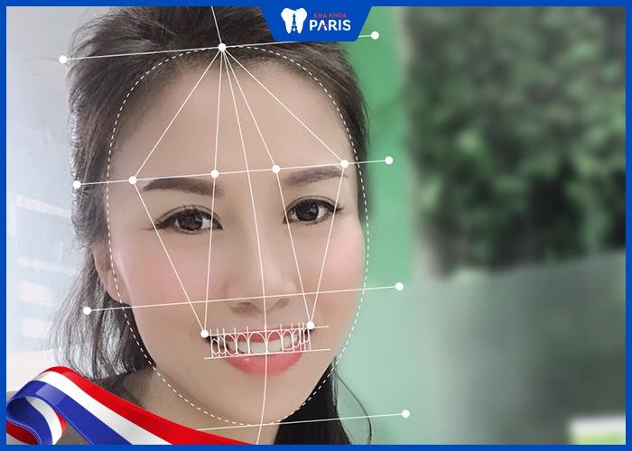 công nghệ bọc răng sứ không bị đen nướu