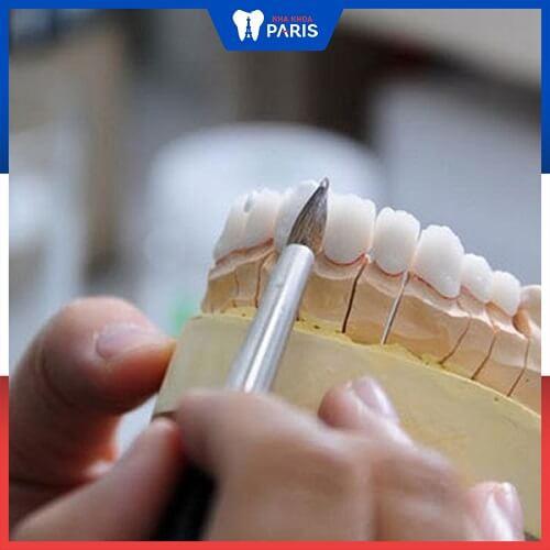 răng sứ bị hỏng