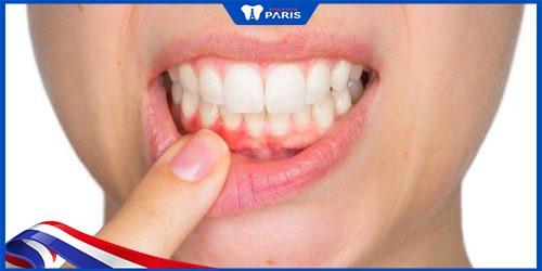 mắc bệnh lý nền khiến trồng răng sứ bị viêm lợi