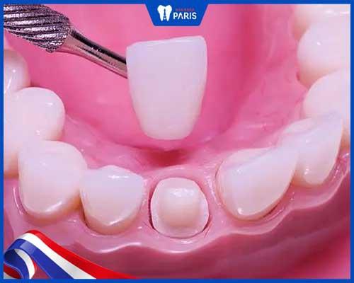 Bọc răng sứ gây cản trở sự phát triển của răng trẻ