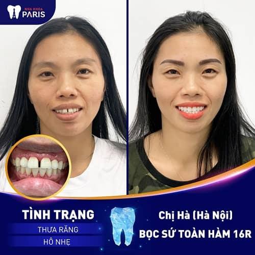 lam răng sứ cho răng bị thưa