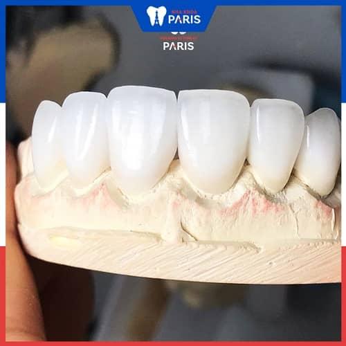 bọc răng sứ cho răng thưa nên chọn loại nào