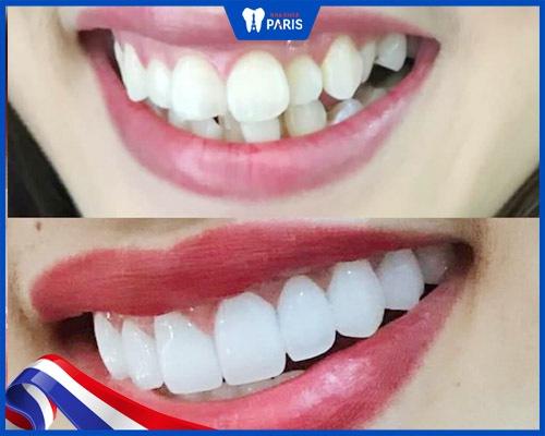 Nên bọc răng sứ cho răng hô vẩu nhẹ